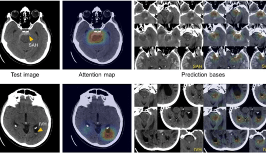 アルツハイマー病の診断を予測する深層学習モデル。6年早く正確に予測する事が可能