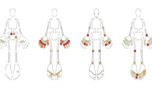 機械学習により関節炎のパターンをグルーピング。疾患予後を予測可能に